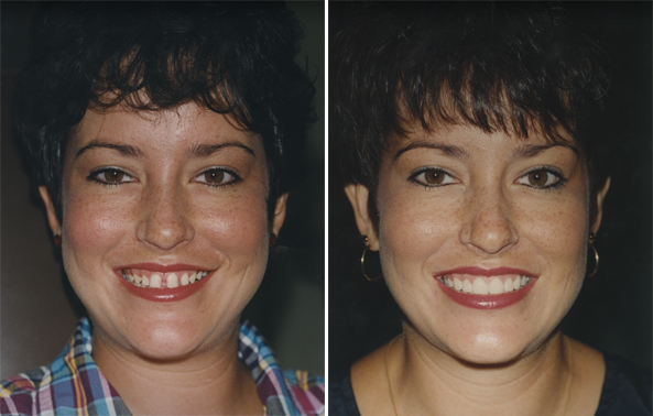 Before And After Pics Of Braces. Before and After Invisible